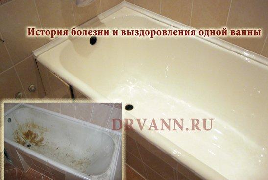Как лечили ванну